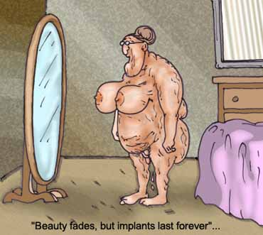 implants are forever