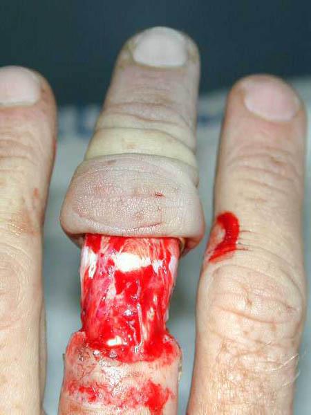 ringfinger1