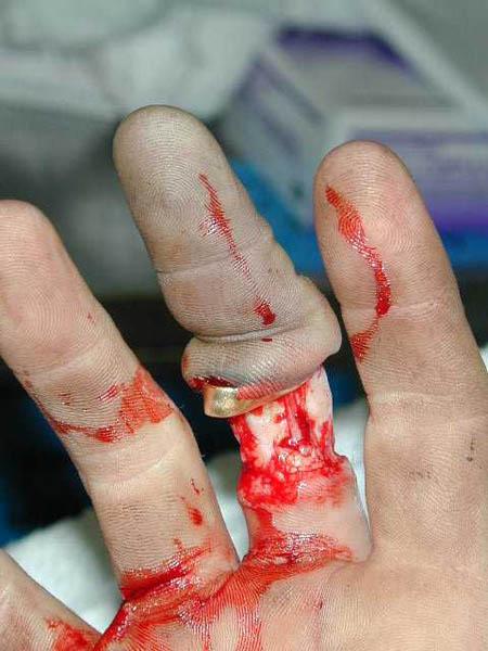 ringfinger2