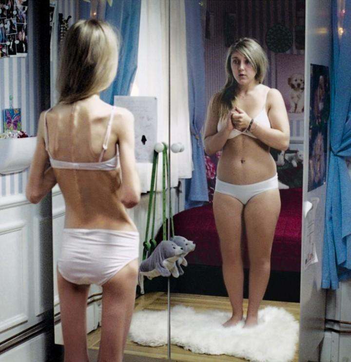 WHAT DO YOU THINK ABOUT ANOREXIC PEOPLE?