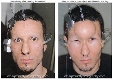 forehead inflator