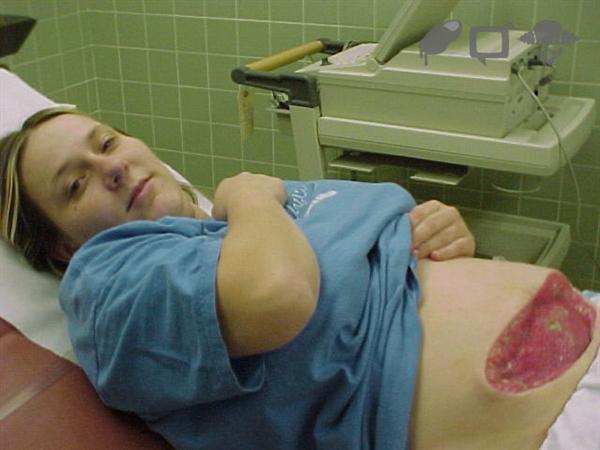 MRSA infection1