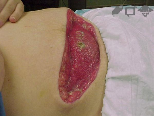 MRSA infection3